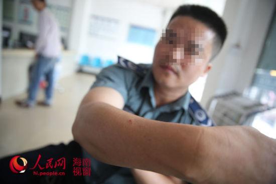 郑营生称手臂和脸部多处遭郑晓芳抓伤