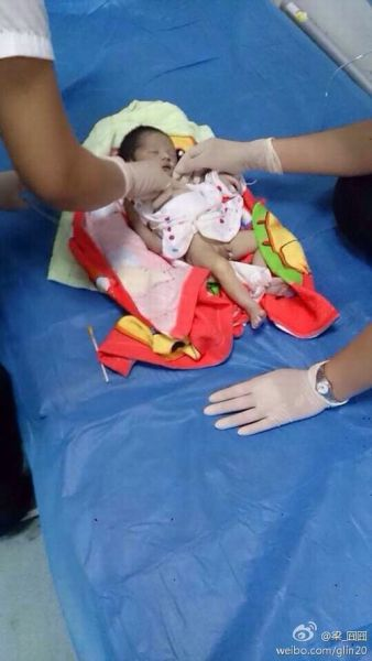 经初步判断,该男婴系刚出生几天的新生儿,其身上并无明显的外伤,具体